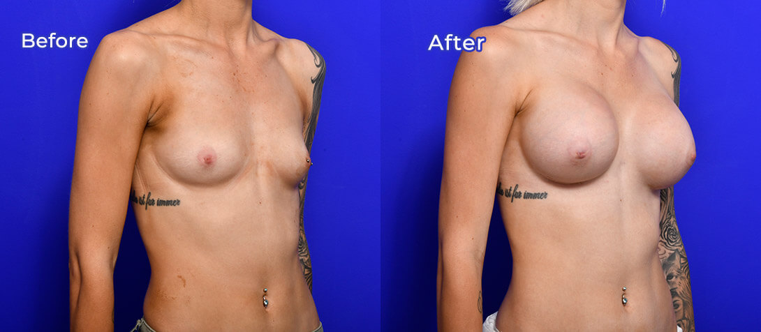Boob job patient before and after surgery, Ritz Plastic Surgery, 01c