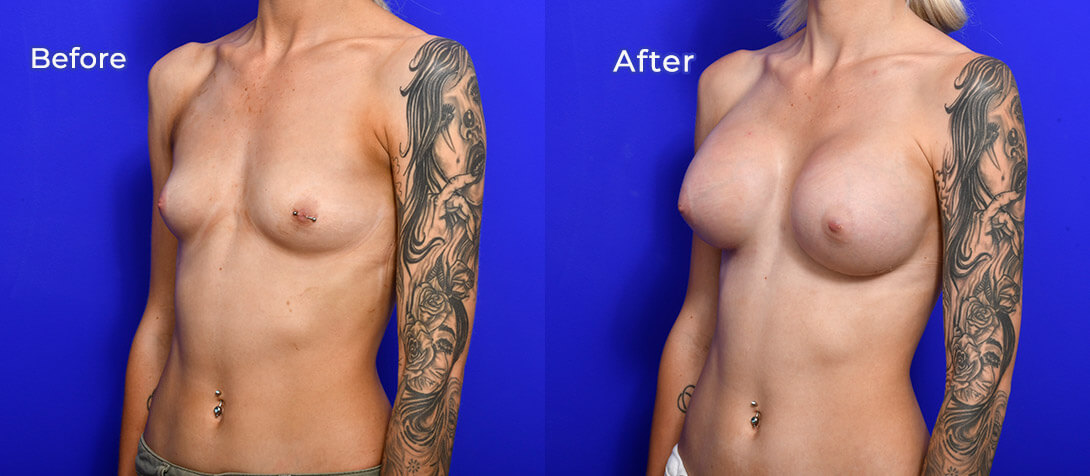 Breast implants, patient before & after, 01d, angle view
