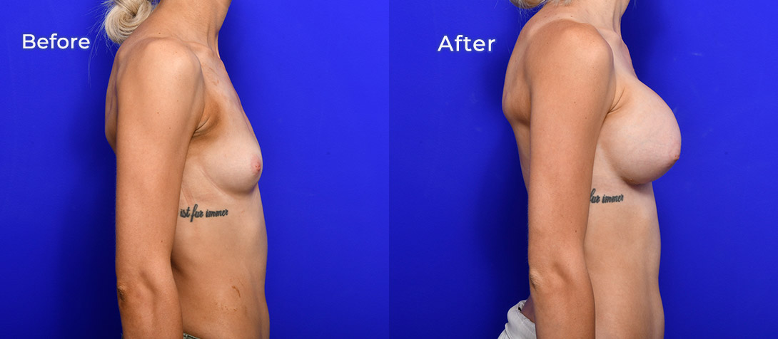Breast implants surgery, Dr Ritz, patient before & after, side view