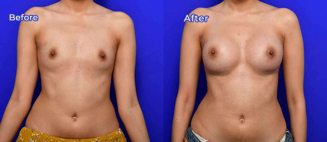 Breast augmentation with Dr Ritz, photo 44a, before & after, front view