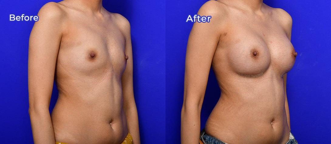 Breast augmentation 45a, Ritz Plastic Surgery