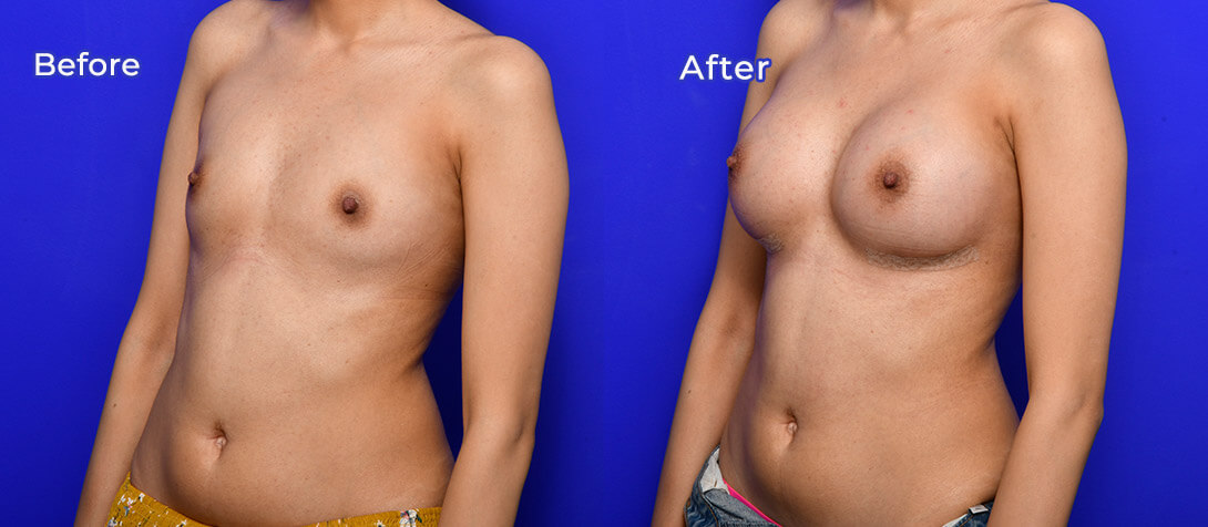 Boob job surgery, before and after photo 47a, angle view