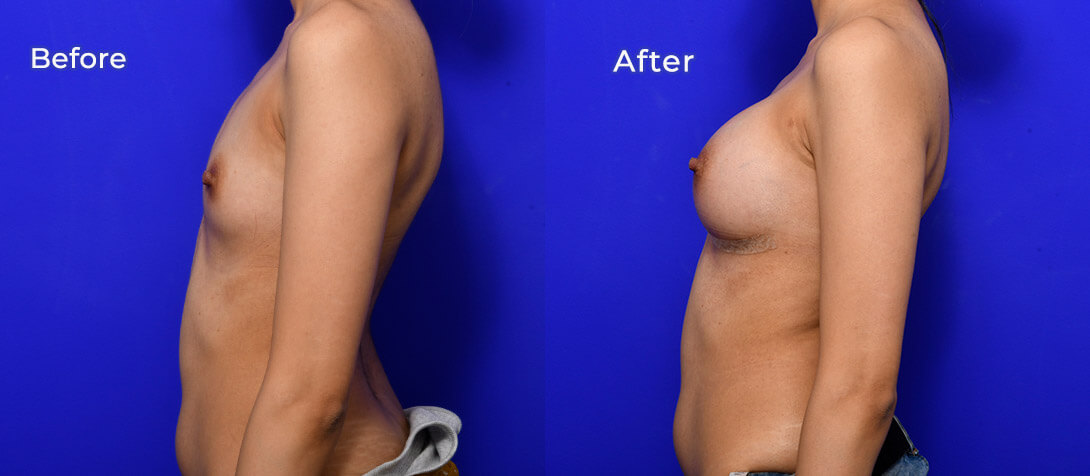 Breast augmentation patient, before & after 48a, Ritz Plastic Surgery