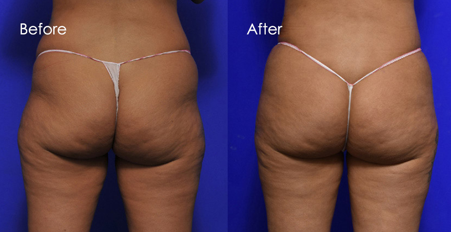 A patient before and after BBL surgery, back view, photo 02